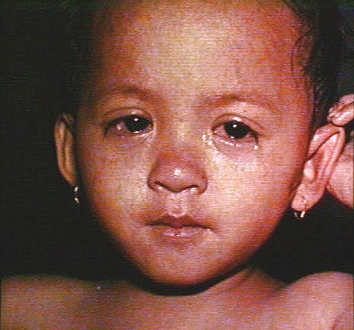 measles - photo #37